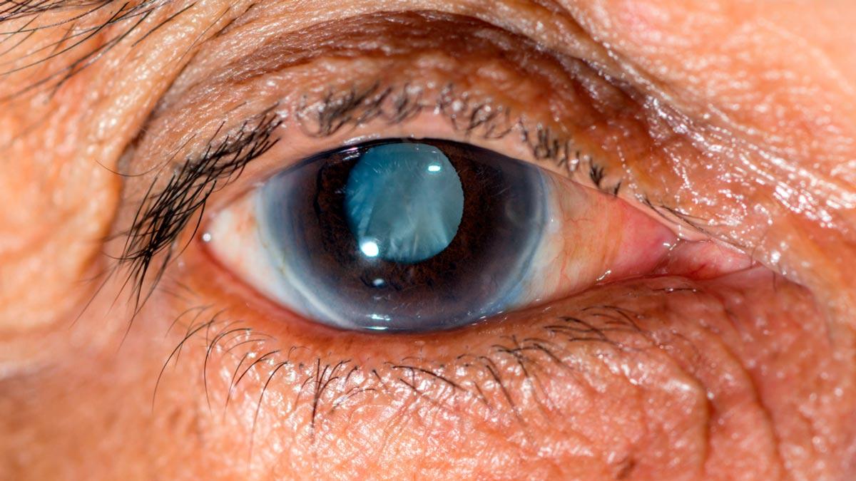 sognare la cecità